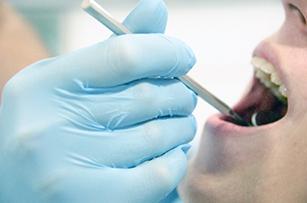 歯科クリニックでの診療風景