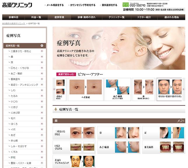 高須クリニック公式ホームページ