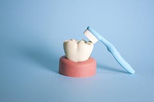 歯科開業前の競合調査